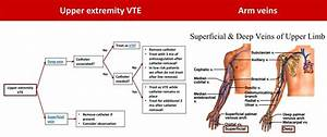 Visual Guide To Management Of Upper Extremity Dvts   Foamed