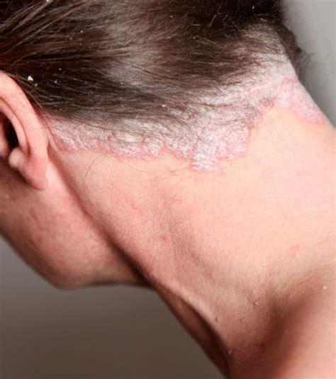 nettoyer un canape en cuir comment soigner les squames du cuir chevelu la réponse