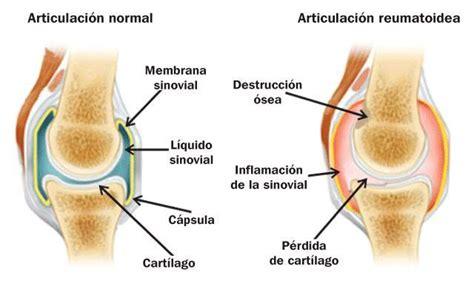beginnende artrose heup