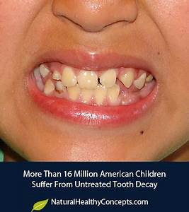 The Biggest Health Problem Facing Our Children is Tooth ...