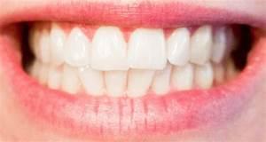 Dents Qui Se Déchaussent Photos : hygi ne dentaire les bons gestes adopter ~ Medecine-chirurgie-esthetiques.com Avis de Voitures