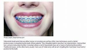 Braces VS Invisalign - Las Vegas Orthodontics