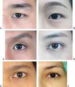 Asian Eyelid Morphologies Are Categorized Into Six Types