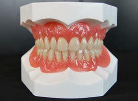 protesi mobile totale 08 protesi mobili totali e parziali dentista bellinzona