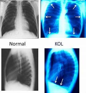 Medicinsk  U00f6versikt Om Kol  Kroniskt Obstruktiv Lungsjukdom