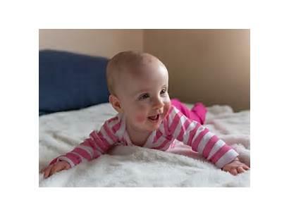 Perioral Babies Dermatitis Treat Balmonds Derm Masterkosa