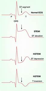 Schematic Representations Of Ecg Patterns  Normal Ecg
