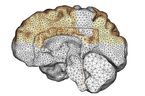 Just about everyone has minor memory glitches as they get older. New simulation shows how Alzheimer's spreads   Stanford News