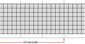 electrocardiogram part ii paramedicine