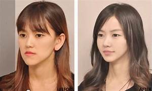Korean Plastic Surgery Before And After Photos : Trendz ...