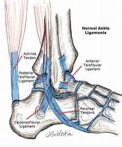Ankle Sprain  Reconstruction  Sports Medicine  Ri Sports
