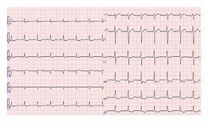 Ecg Shows Downsloping St Depressions In Left Precordial