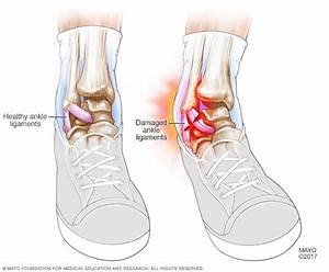 Sprained Ankle Disease Reference Guide