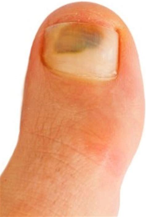 Bruised Nail Bed by Bruised Toenail Related Keywords Bruised Toenail