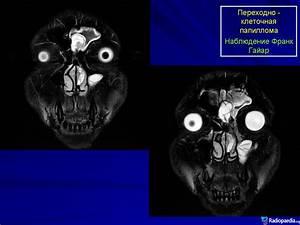 Папиллома лечение лекарствами отзывы