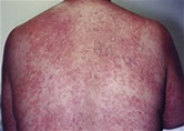 Tissue eosinophils and the perils of using skin biopsy ...