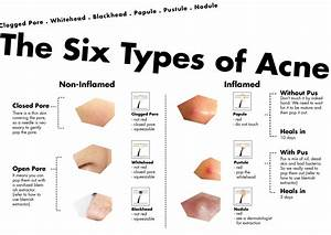 different types of acne diagram types of acne ...