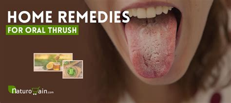 home remedies  oral thrush  prevent infection