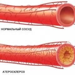 Гипертония разное давление