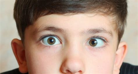 What Is A Lazy Eye How Can I Treat My Lazy Eye Query Read Health Related