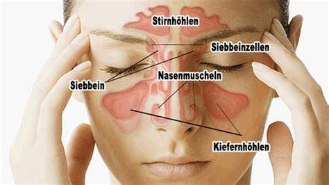 sinusite cause sintomi cure e rimedi naturali efficaci