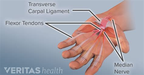 carpal tunnel syndrome  soft tissue inflammation