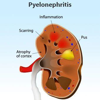 kidney infection pyelonephritis symptoms signs