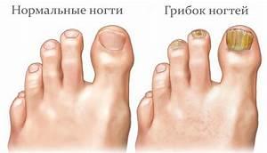 Лечение грибка ногтей воронеж врачи отзывы