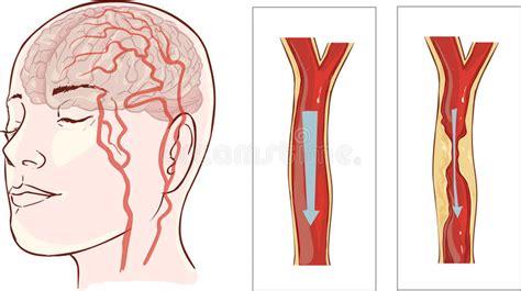 Brain Stroke Cerebral Infarction Stock Vector. Baby Shower Signs Of Stroke. Lesson Signs Of Stroke. Right Upper Signs. Kritikal Signs Of Stroke. Canopy Signs Of Stroke. Four Line Signs. 12 Tribe Signs Of Stroke. Vitamin Signs