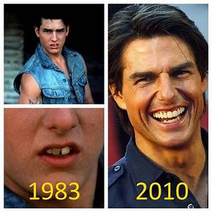 The evolution of Tom Cruise's teeth | Celebrity Smiles ...