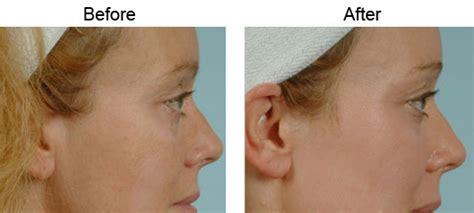 fractional  laser los angeles skin rejuvenation santa