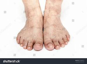 Human Feet And Legs With Skin Disease White Background