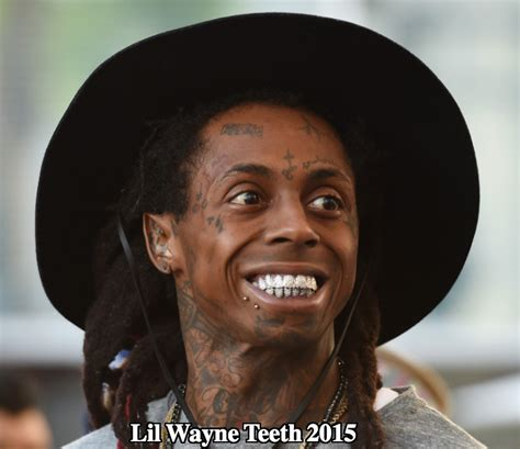 lil wayne teeth diamonds   words precious