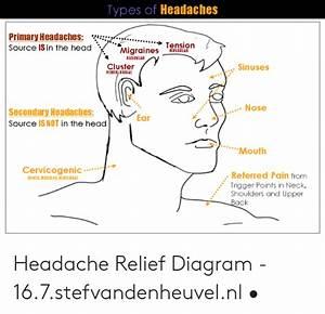 Headache Diagram