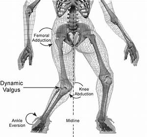 Anterior Cruciate Ligament  Acl  Tears   Prevention Is The