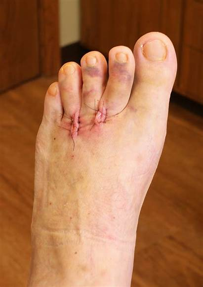 Foot Surgery Excision Mark Dressing Stitches Boot