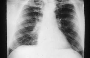 Asbestos-related Pulmonary Disorders - Pulmonology Advisor  Pneumonia Asbestos