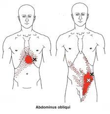 Buikpijn en rugpijn : Is er een verband?