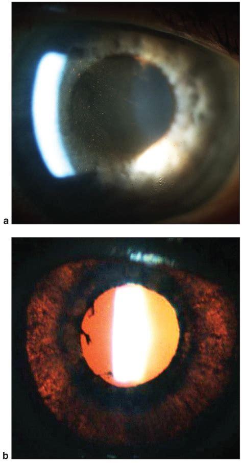 diffuse iris transillumination defects american academy
