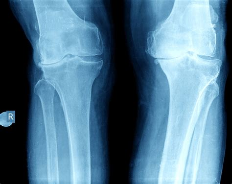 knee arthritis rays xray knees bad replacement mri ray acl osteoarthritis pain cartilage persona zimmer surgery meniscus injury vs ligaments