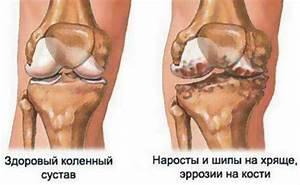 Лечение артроза коленного сустава в санаториях
