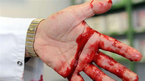 sandhausen  apotheke eingebrochen blutende wunde