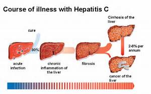 Also, if you get doubt – whether it is already present in the body ...  Hepatitis Cirrhosis