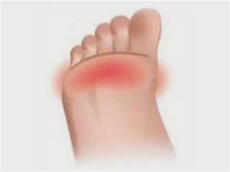 balls   feet hurt dermal filler  high heels