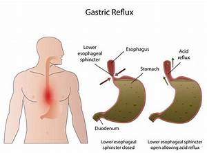 how to get rid of acid reflux in throat