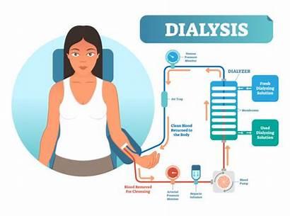 Dialysis Clip Vector Procedure Illustration Liver System