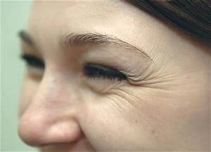 Маска для лица из крахмала от морщин вокруг глаз