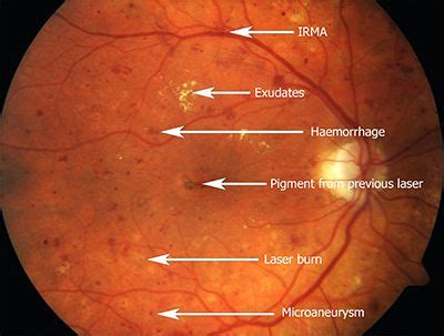 diabetic retinopathy treated diabetes