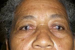 Medical Pictures Info  U2013 Pterygium