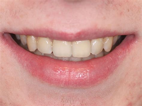The good news is that in a great many cases braces are considered medically necessary; Case 34: Damon Braces - Cork Dental Smiles